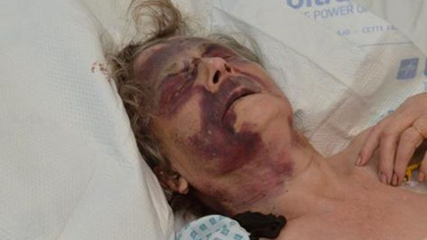 Iris Warner, a 90-year-old woman in the UK, was brutally assaulted in her sleep.