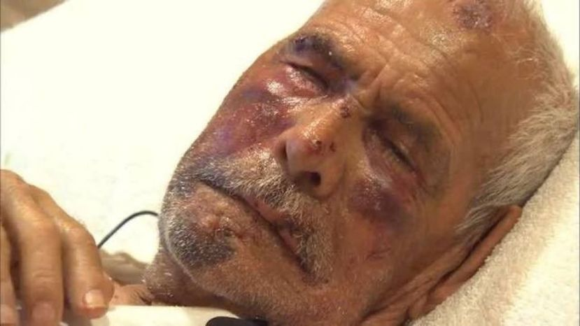 Rodolfo Rodriguez, 92, was beaten