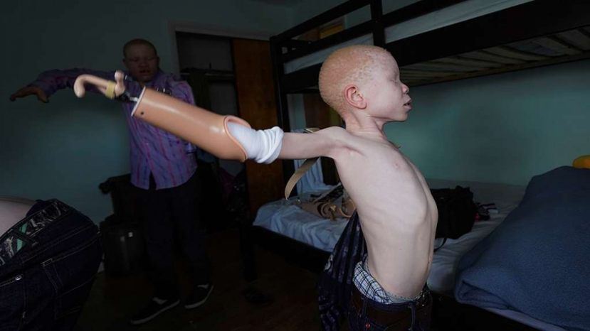 Baraka Lusambo, 7, a Tanzanian with albinism