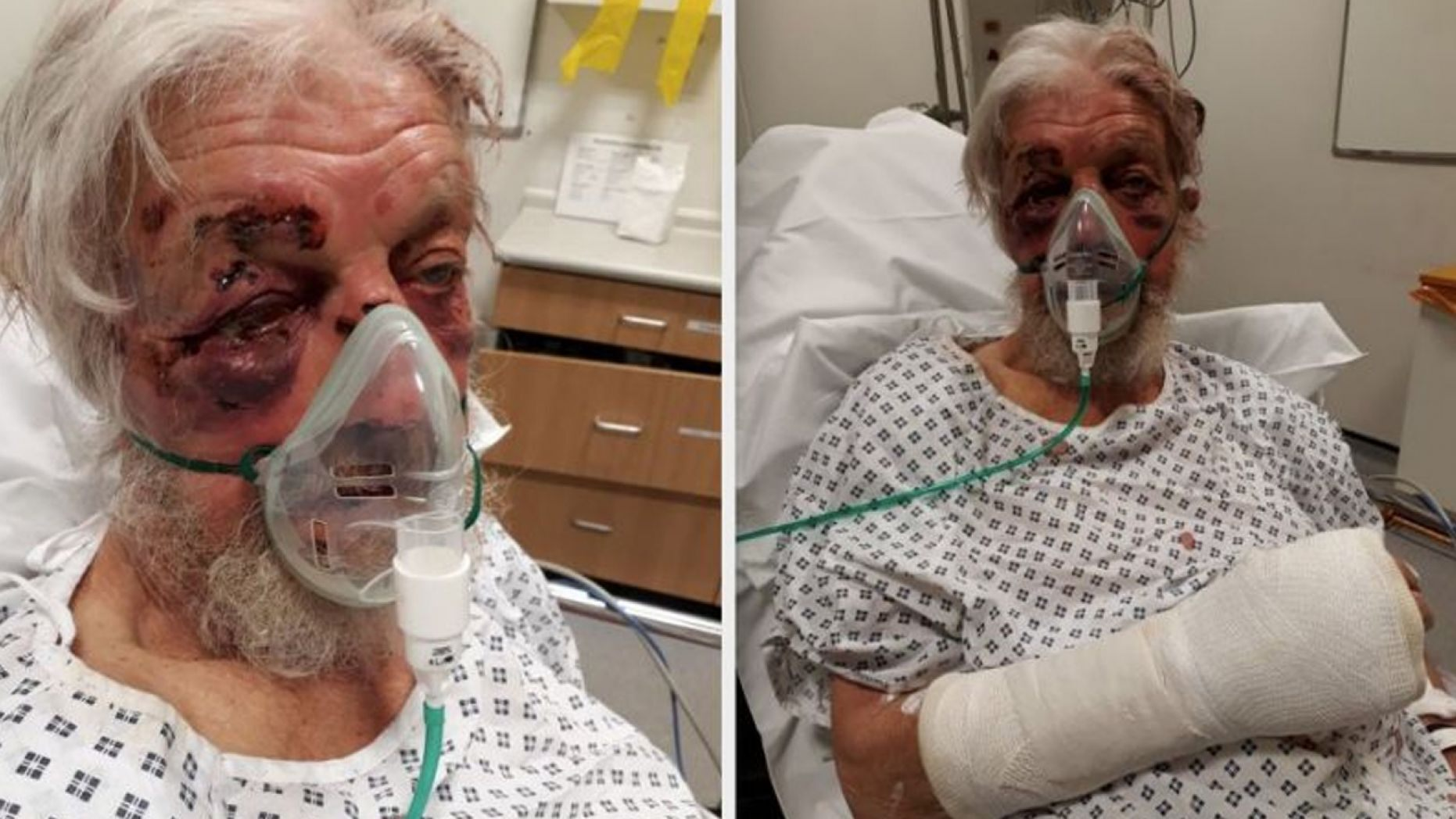 Paul Eva, 80, sustained serious injuries