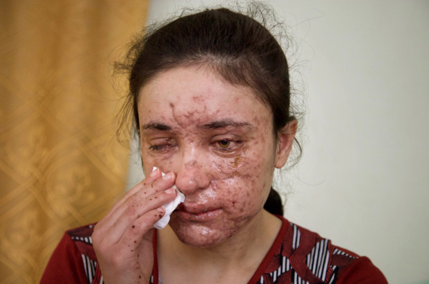 Lamiya Aji Bashar, an 18-year-old Yazidi girl who escaped her Islamic State group enslavers.