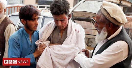 A boy receives medical treatment after a blast at a mosque in Nangarhar province