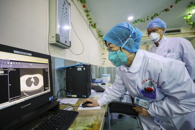 Doctors look at a CT scan of a patient at a hospital in Wuhan in central China's Hubei Province, Thursday, Jan. 30, 2020. China counted 170 deaths from a new virus Thursday and more countries reported infections, including some spread locally, as foreign evacuees from China's worst-hit region returned home to medical observation and even isolation. (Chinatopix via AP)