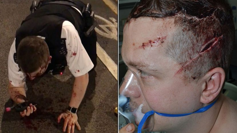 Outten is pictured left after discharging his Taser and stopping Rodwan's assault. He is pictured right following surgery for his multiple injuries. (Metropolitan Police)