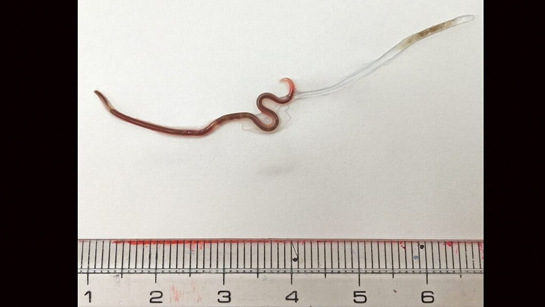 The worm tweezed out of the woman's tonsil was 38 millimeters (1.5 inches) long.