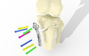 The bespoke implant preserves the existing joint and can be used at an earlier stage of arthritis, before a knee replacement is needed.CREDIT University of Bath.