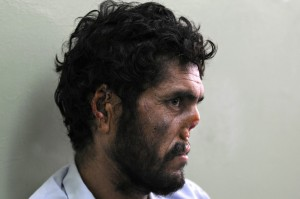 In 2009, Afghan farmer Lal Mohammad said his nose and ears were cut off by the Taliban. MASSOUD HOSSAINI/AFP via Getty Images