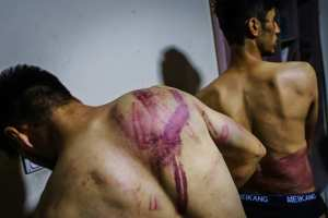 Journalists, Nemat Naqdi, 28, left and Taqi Daryabi, 22, show wounds sustained after Taliban fighters beat them (Marcus Yam/Los Angeles Times/TNS)